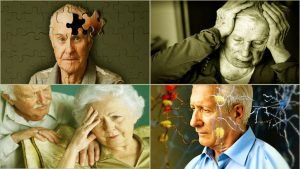 Know the 10 Warning Signs of Senile Dementia @ Cannon Free Library